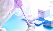 """Em audiência no Congresso hoje, 2, o ministro da Saúde, Eduardo Pazuello, disse que """"está caminhando"""" a análise da Anvisa sobre a prorrogação da validade dos testes RT-PCR  - Continue lendo"""